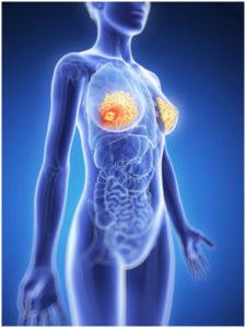 calcium reduces breast cancer risk