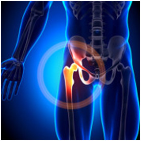 natural treatment for hip pain