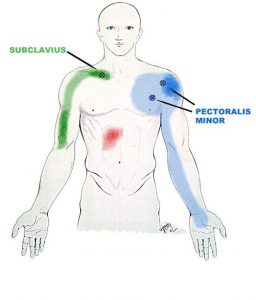 biceps pain subclavius muscle