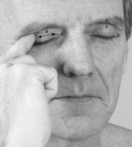 eye pain relief massage