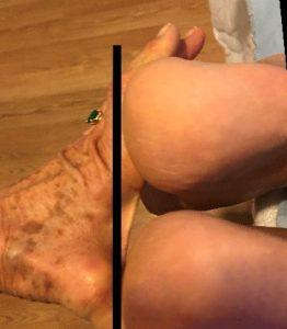leg same length